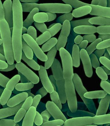 کلونی باکتری های مفید که مواد زائد نیتروژنی را مصرف می کنند.